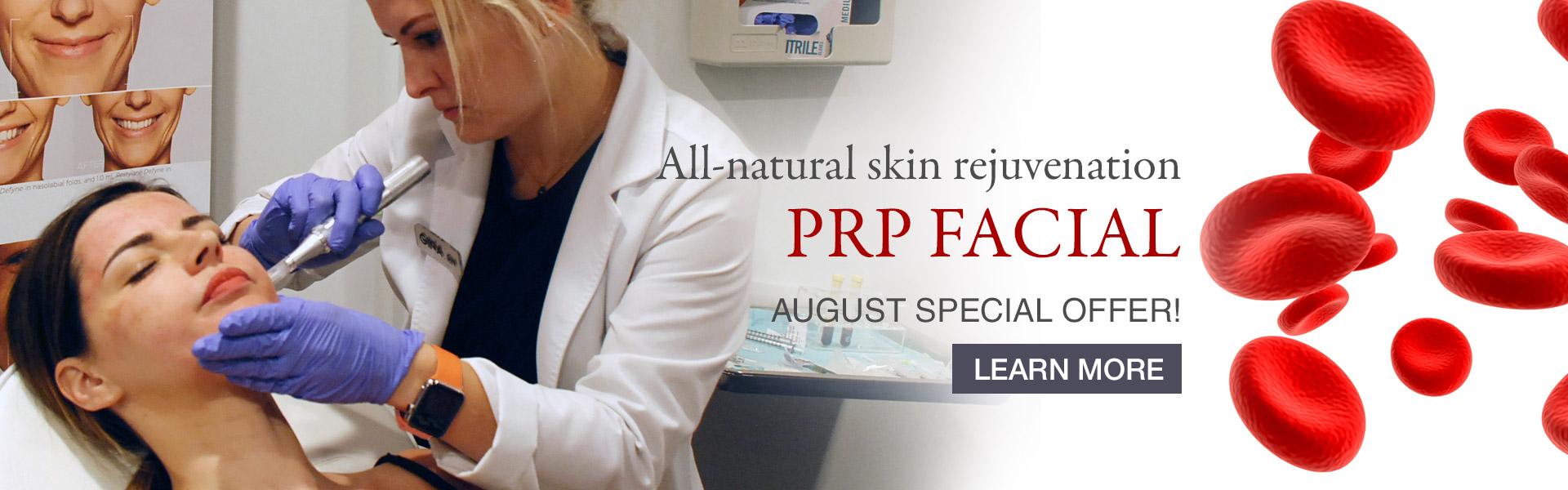 mspa_prp-facial-slider_07-24-2018-1