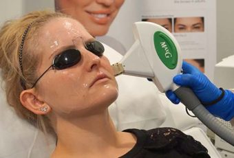 Laser & Light Treatments