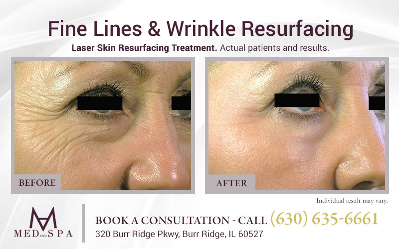 medandspa laser-skin-resurfacing 01