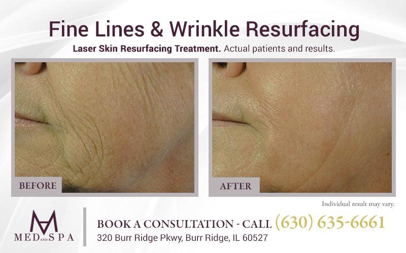 medandspa laser-skin-resurfacing 02