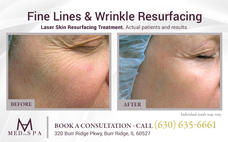 medandspa laser-skin-resurfacing 03