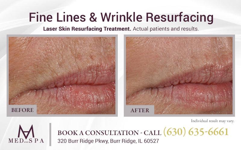 medandspa laser-skin-resurfacing 04