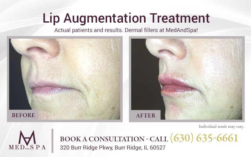 medandspa lip-enhancement 07