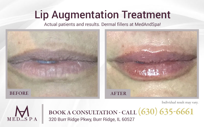 medandspa lip-enhancement 08