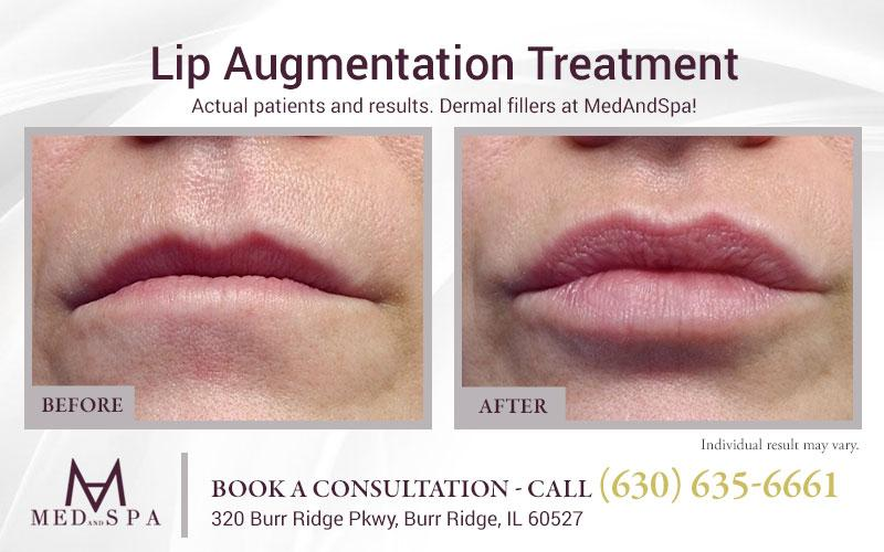 medandspa lip-enhancement 00