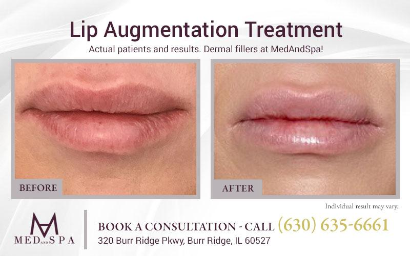 medandspa lip-enhancement 03