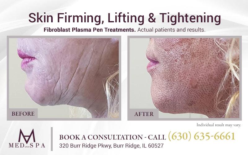 medandspa skin-rejuvenation plasma-pen 07